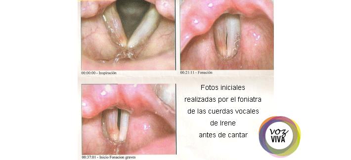 cuerdas vocales inflamadas